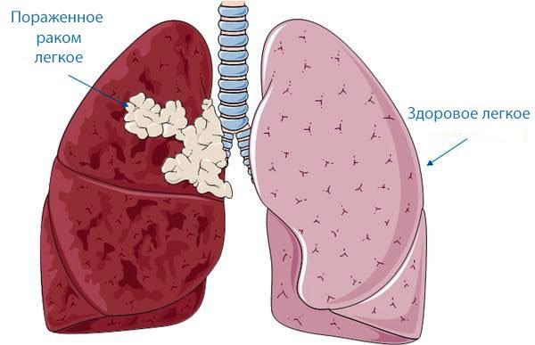 Рак легкого 4 стадии на картинке