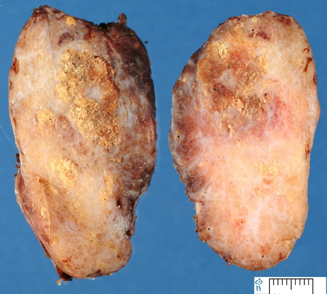 щитовидная железа, пораженная папиллярным раком