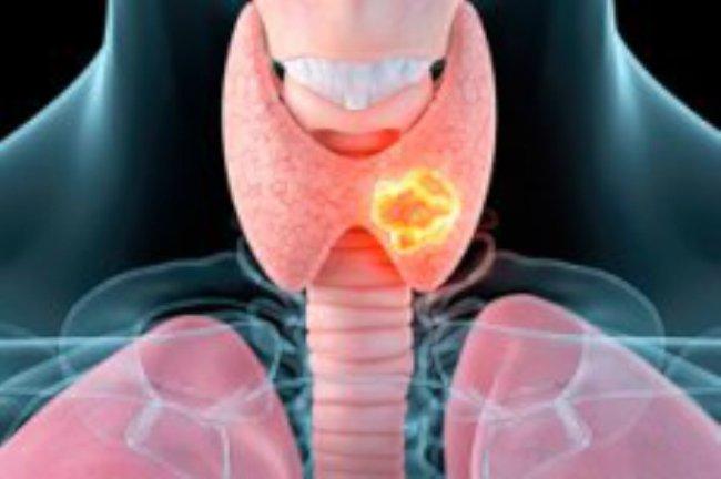 раск щитовидной железы графика