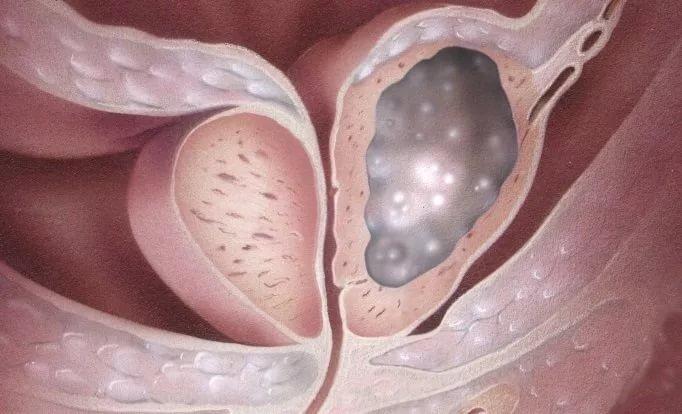 Разработана новая методика лечения рака предстательной железы