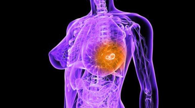 рак молочной железы графика