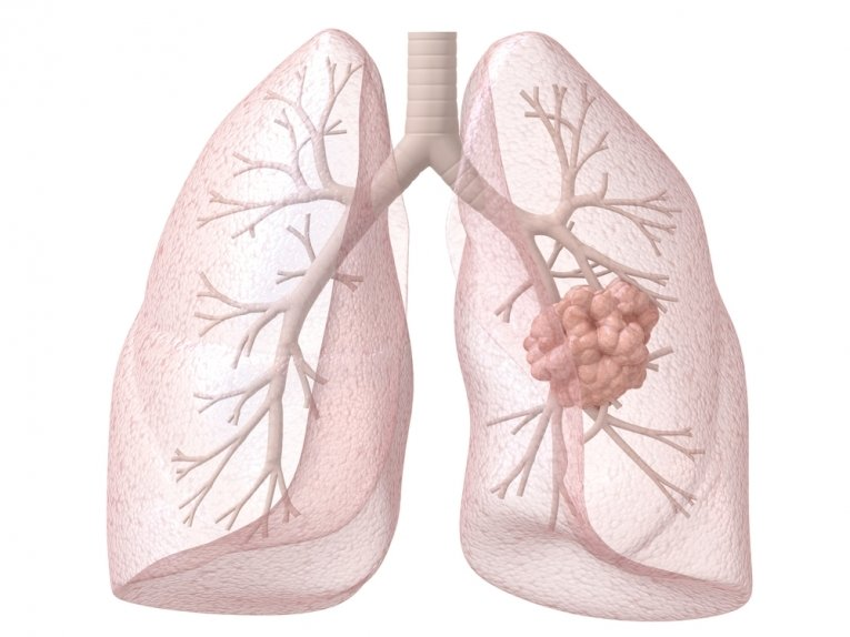 4 стадия рака легкого