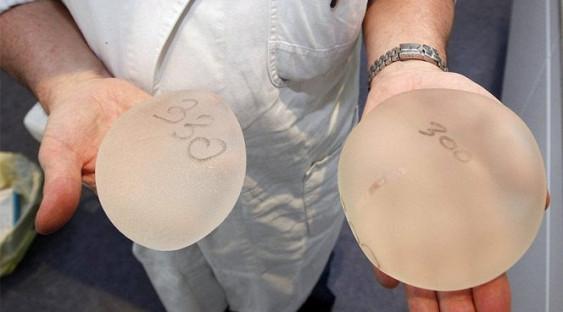 Грудные импланты связали с риском развития редкого рака