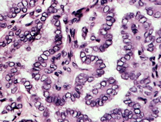 папиллярный рак щитовидной железы под микроскопом
