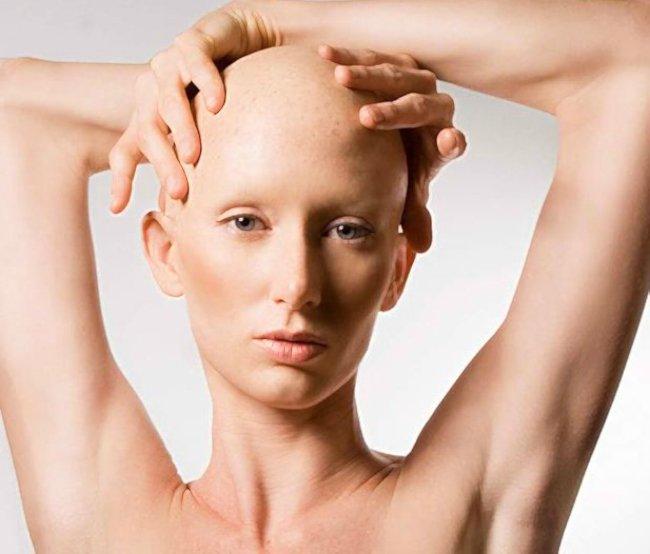 женщина с онкологией без волос