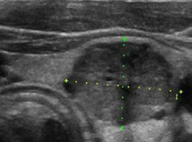 медулярный рак щитовидной железы на снимке