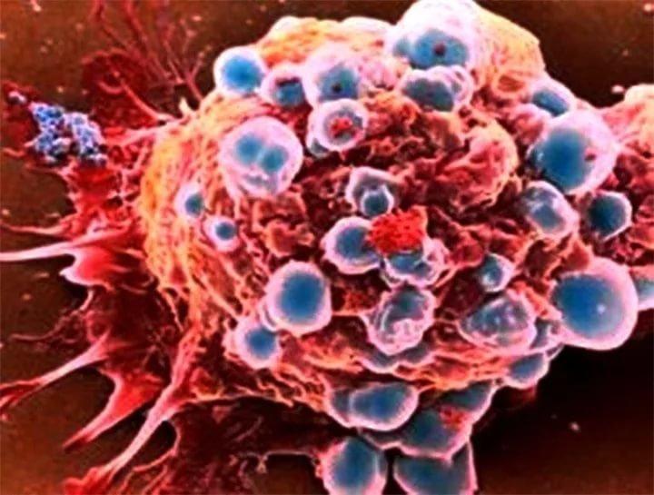 Постоянный страх может вызвать онкологические заболевания
