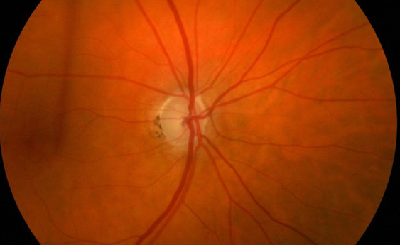 Медики определили предвестника глаукомы