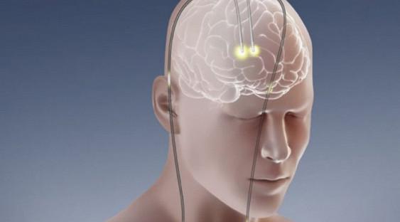 Невральная стимуляция поднимает на ноги после инсультов