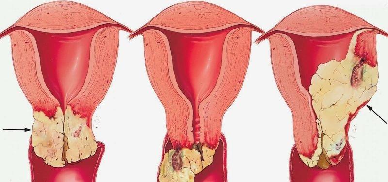 Болит живот после прижигания эрозии шейки матки