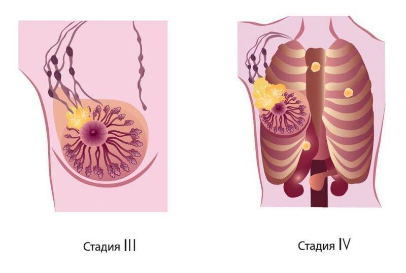 Этапы заболевания